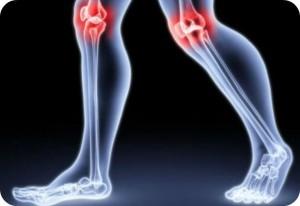 Co to jest reumatyzm?