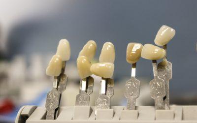 Śliczne nienaganne zęby dodatkowo świetny prześliczny uśmieszek to powód do dumy.